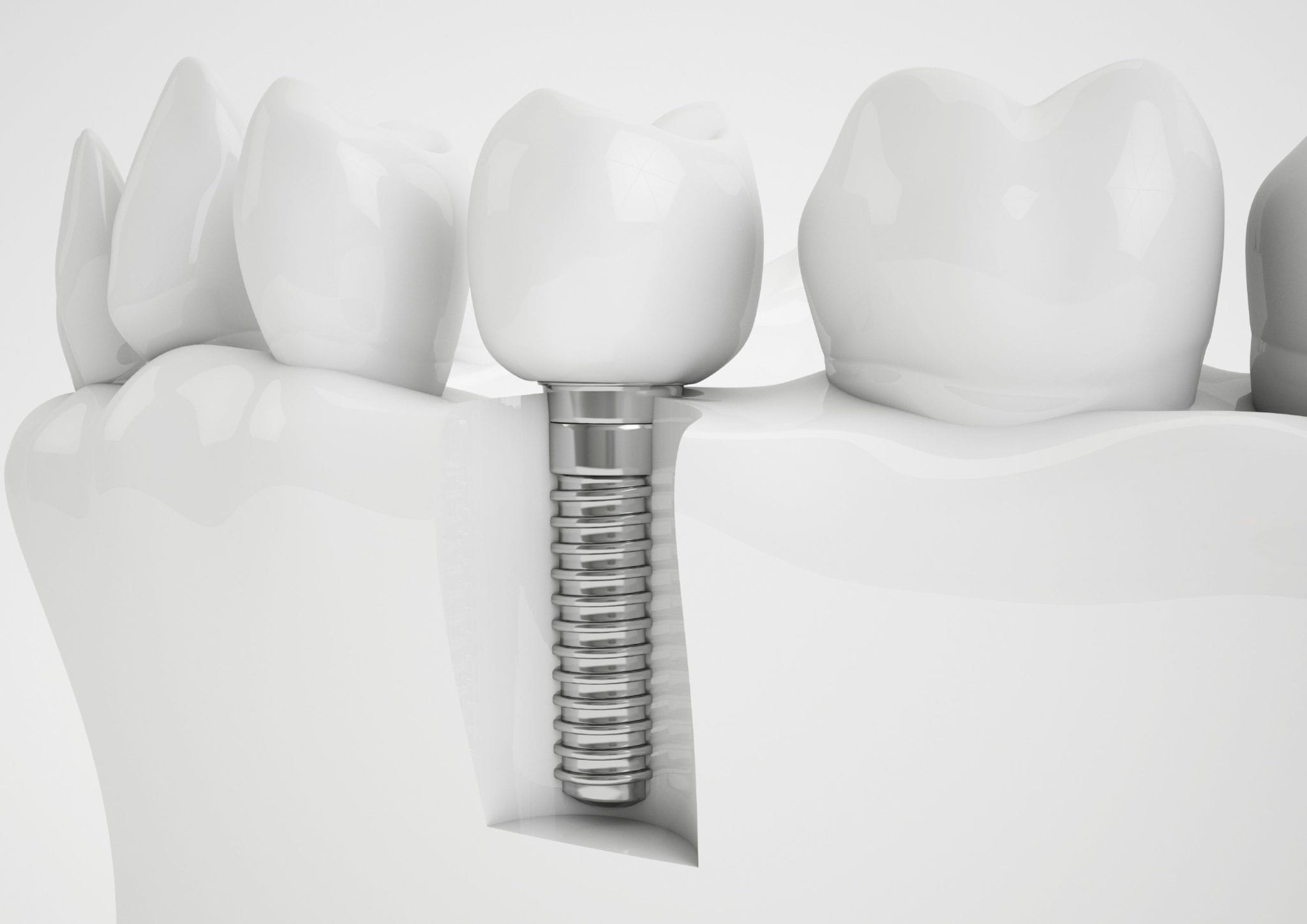 32-Pearls-Seattle-Dentist-Dental-Implants