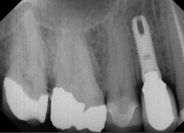 32 Pearls dental implant 2