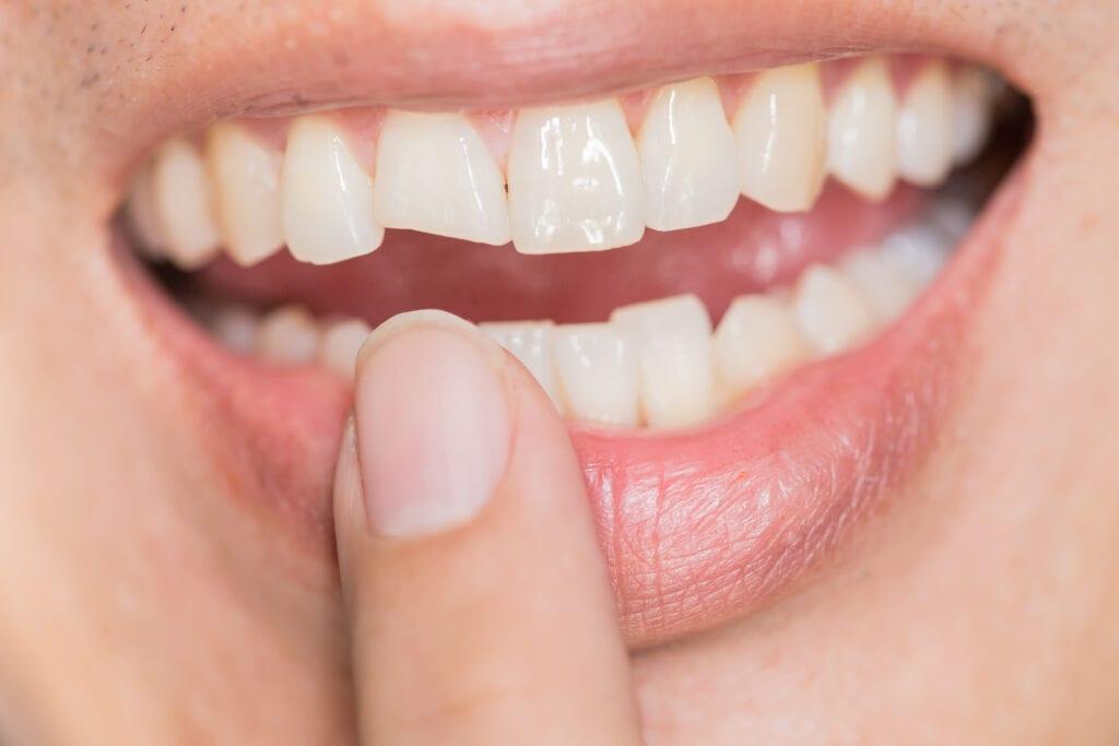 Cosmetic Bonding for teeth 32 pearls Seattle dentist